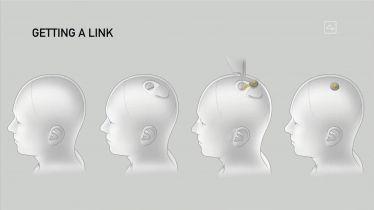 Neuralink V2 - kolejny krok w stronę cyberpunka